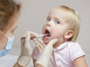Ангина у ребёнка: причины возникновения, характерные признаки, способы лечения и профилактические меры