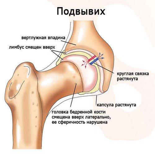 Дисплазия тазобедренных суставов у детей: признаки и причины отклонений, методы диагностики, эффективность использования шин и физиопроцедур, польза массажа