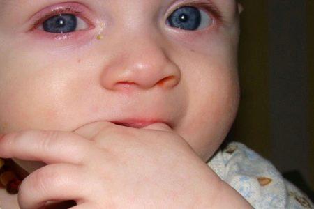 Халязион у ребенка: симптомы и признаки заболевания, методы лечения народными средствами и медикаментами, советы доктора Комаровского