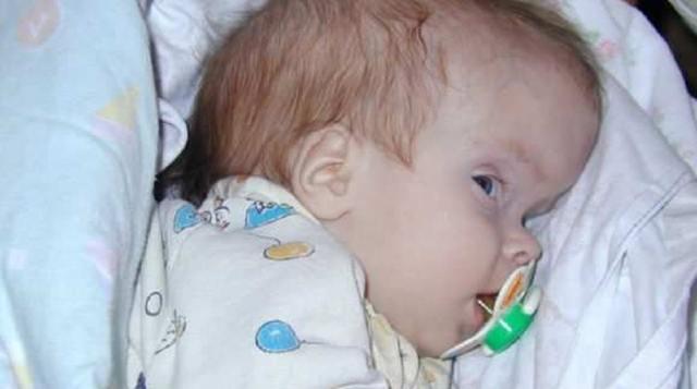 Краниосиностоз: причины и виды заболевания, симптомы, лечение и последствия для организма ребенка, мнение врачей