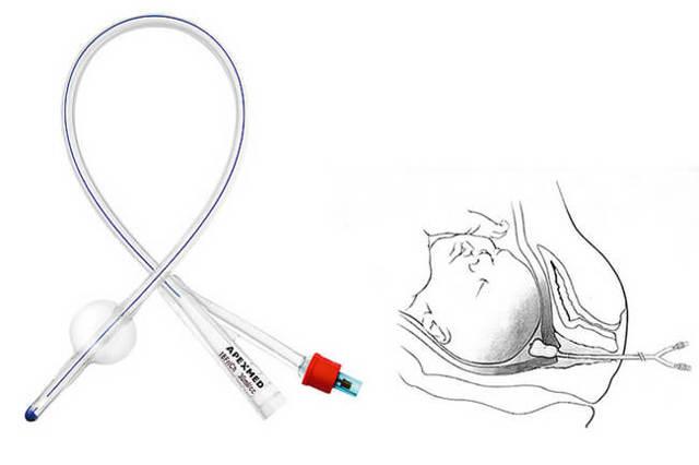 Подготовка шейки матки к родам в домашних условиях и роддоме: медицинское обследование и оценка готовности, упражнения Кегеля и медикаментозная терапия, использование механических методов и народных средств