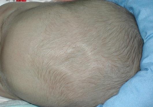 Пульсирует родничок у грудничка: функции мягкого темени и возрастные характеристики, опасные причины и поводы для обращения к врачу
