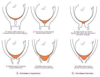 41 неделя беременности: перенашивание и как искусственно вызывают роды