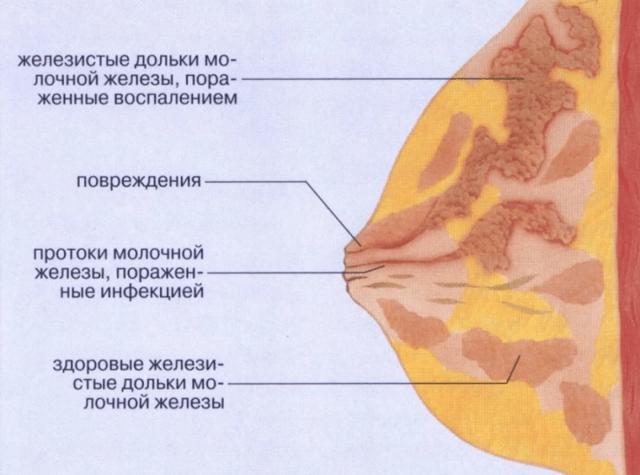 Абсцесс молочной железы и воспаление (мастит): первые симптомы