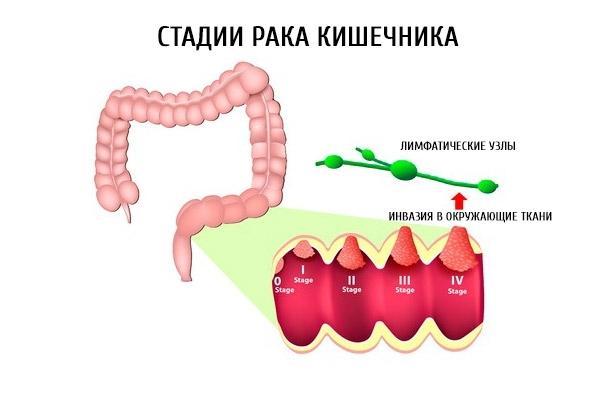 Аденокарцинома толстой кишки: причины развития и разновидности заболевания, методы борьбы с раком кишечника