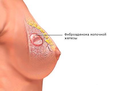 Аденома молочной железы: причины опухоли, типичные симптомы, диагностика и способы лечения