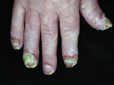Акродерматит Аллопо: причины заболевания, характерные симптомы, дифференциальная диагностика и методы лечения