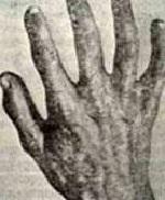 Акрогерия семейная, синдром Готтрона: причины заболевания, сопутствующие признаки, методы обследования и лечения