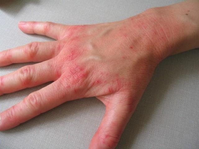 Актинический дерматит на руках, на лице: что это такое и как проявляется, методы лечения и профилактики