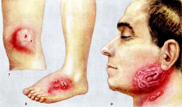 Актиномикоз слюнных желез: причины возникновения, клиническая картина, способы лечения и возможные осложнения