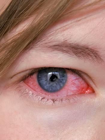 Аллергический кератит: причины возникновения, клиническая картина, лечебные и профилактические мероприятия