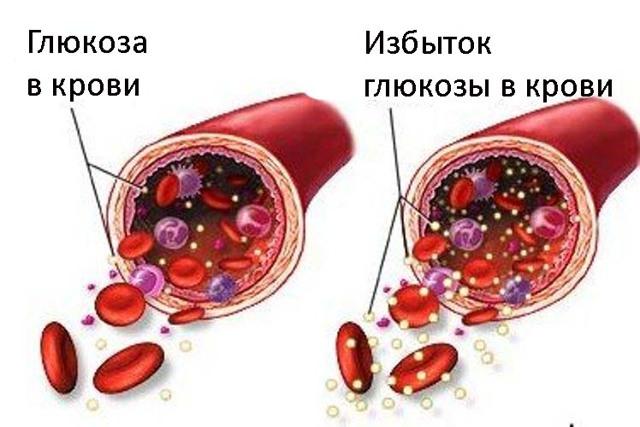 Аллергия на инсулин: характерные симптомы, чем заменить и как скорректировать лечение
