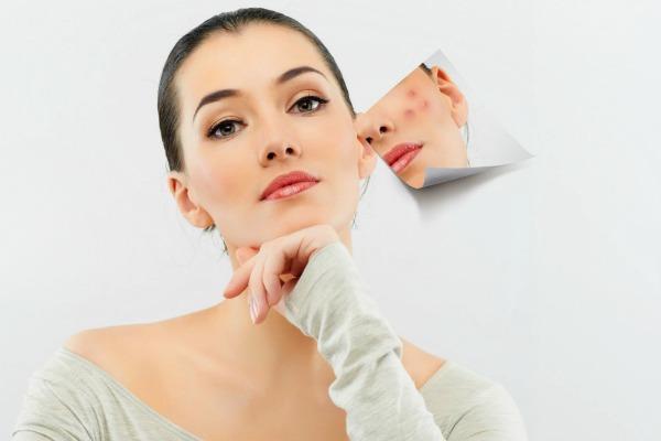 Аллергия на косметику на лице, на глазах: сопутствующие симптомы, методы лечения и возможные осложнения