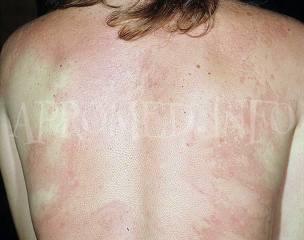 Аллергия: симптомы и лечение, формы аллергических реакций, причины развития аллергии