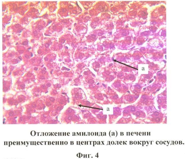 Амилоидоз печени у человека: причины заболевания, сопутствующие симптомы, методы лечения и профилактика