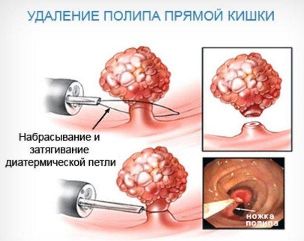 Анальный полип: причины возникновения, типичные признаки, диагностика и принципы лечения