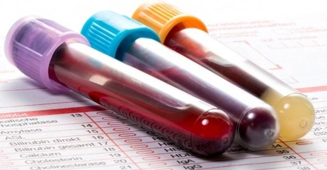 Анализ крови на ревматоидный фактор: особенности исследования, рекомендации по подготовке, расшифровка результатов