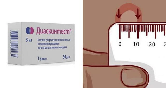 Анализ крови на туберкулез: разновидности диагностики, показания и противопоказания, особенности проведения