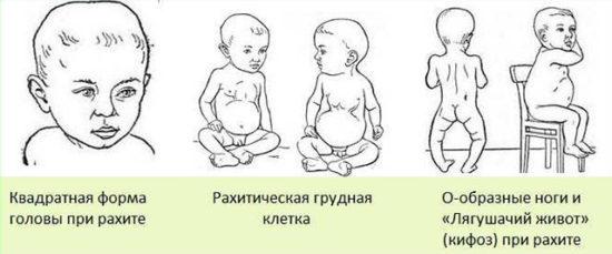 Анализ мочи по Сулковичу: нюансы метода, норма у детей, показания к диагностике