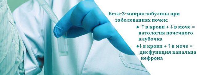 Анализ на онкомаркер Бета-2-микроглобулин: важность исследования, подготовка к процедуре, интерпретация результата