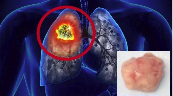 Анализ на онкомаркер CYFRA 21-1: причины назначения диагностики, правила подготовки, расшифровка результатов