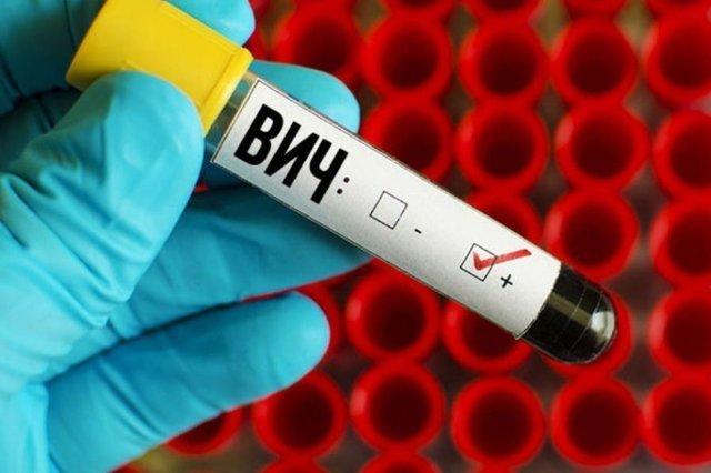 Анализ на вирус папилломы человека: методы исследований, особенности проведения, расшифровка результатов