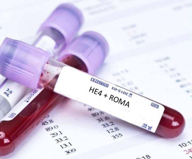 Анализ ROMA: показания к исследованию, проведение процедуры, нормы и отклонения