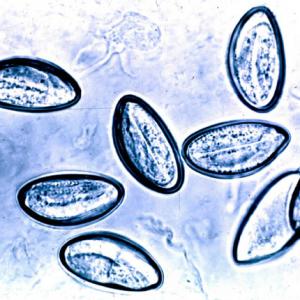 Анализы, соскобы на энтеробиоз: причина назначения, подготовка к процедуре, значения показателей