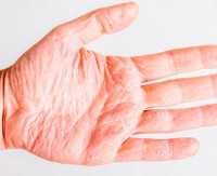 Ангидроз: что это такое, причины патологии, эффективные методы лечения