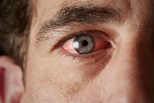 Ангулярный конъюнктивит Моракса-Аксенфельда: факторы риска заражения, клиническая картина, правила терапии