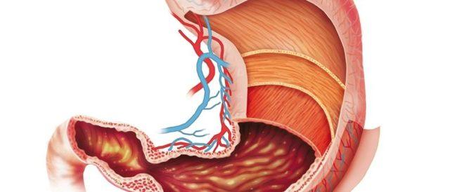 Антральный гастрит с атрофией слизистой: причины развития, сопутствующие симптомы, методы лечения и профилактики