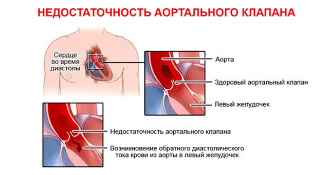 Аортальная недостаточность: классификация по степеням, характерные проявления, методы лечения