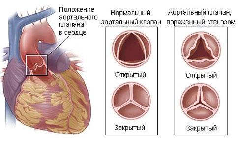 Аортальный стеноз: причины возникновения и симптомы, показания для операции и лечение медикаментами