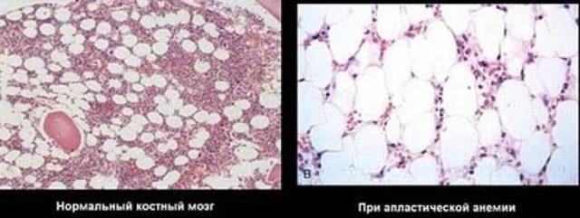 Апластическая анемия: причины заболевания, клинические проявления, диагностика по картине крови и способы лечения