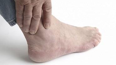 Артроз голеностопного сустава: причины патологии, сопутствующие симптомы, методы лечения