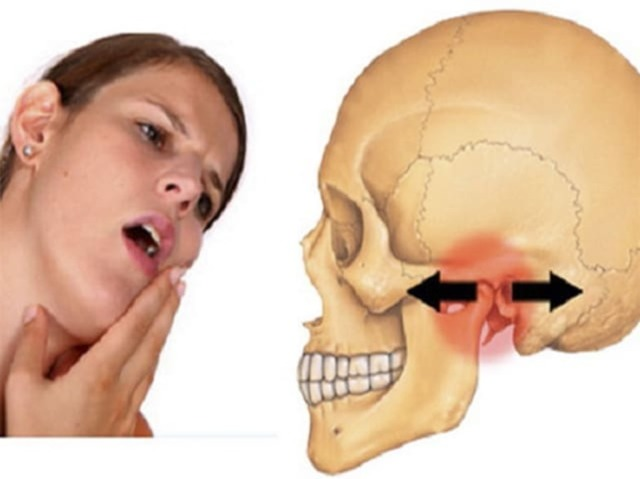 Артроз височно-нижнечелюстного сустава (ВНЧС): причины возникновения, характерные проявления, лечение в клинике и в домашних условиях