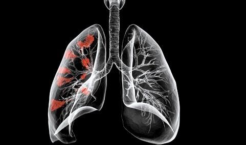 Ателектаз легких: механизм развития, клинические проявления, методы обследования и лечения