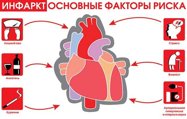 Атипичные формы инфаркта миокарда: виды, симптоматика, неотложная помощь
