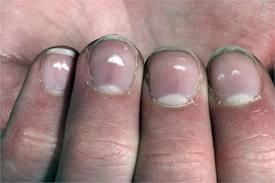 Белые пятна на ногтях: причины появления, особенности обследования, лечебные и профилактические мероприятия