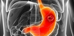 Безоар желудка у человека: виды заболевания и причины появления, характерные симптомы и принципы лечения