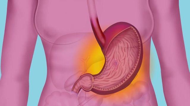 Билиарный рефлюкс-гастрит: провоцирующие факторы, клинические проявления, план обследования и тактика лечения