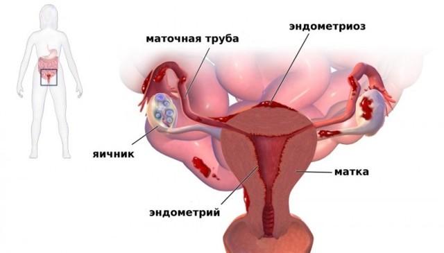 Боль при сексе и после него у женщин: возможные причины