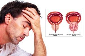Боль в паху у мужчины: разновидности и возможные заболевания, методы обследования, принципы лечения и прогноз
