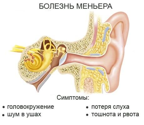 Болезнь Меньера: что это такое, особенности проявления и методы лечения