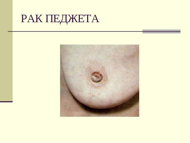 Болезнь Педжета (рак соска молочной железы): симптомы на начальной стадии