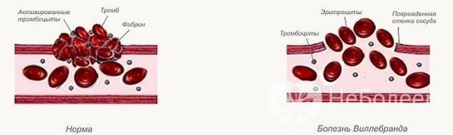 Болезнь виллебранда: типы, симптомы, диагностика, лечение, особенности лечения болезни виллебранда у детей