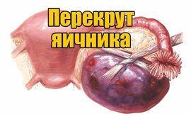 Болезненное уплотнение в животе у женщин: возможные причины и методы диагностики