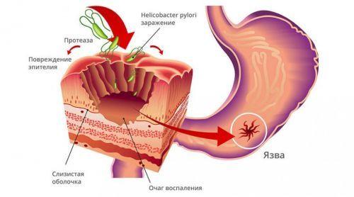 Боли в животе при язве: как распознать болезнь
