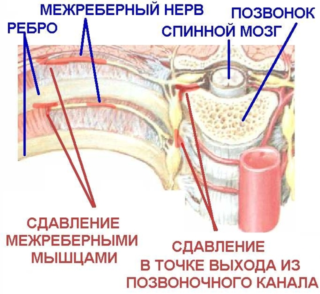 Болит лопатка: что делать, причины боли, методы лечения