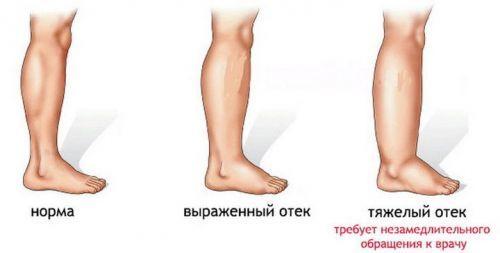 Болит стопа ноги ближе к пальцам, пятке, посередине при ходьбе: причины недомогания, выбор нужного специалиста